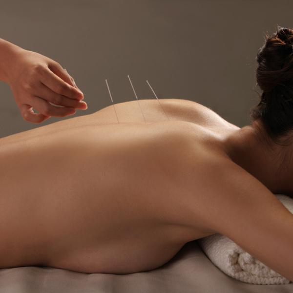 Carmen Hopf-Göller Akupunktur